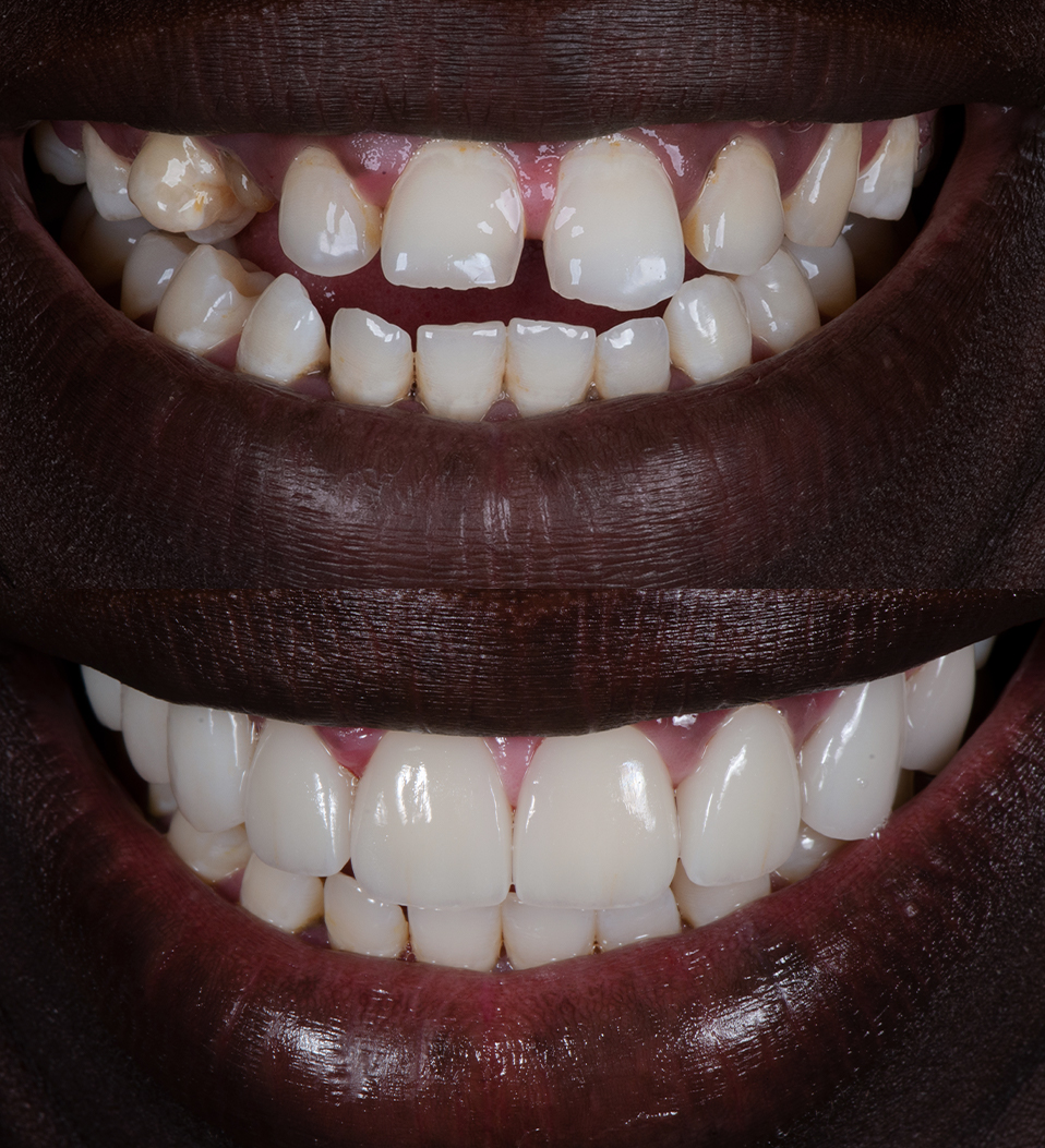 Before and after missing teeth with porcelain veneers by Dr Dee - Joseph Deng