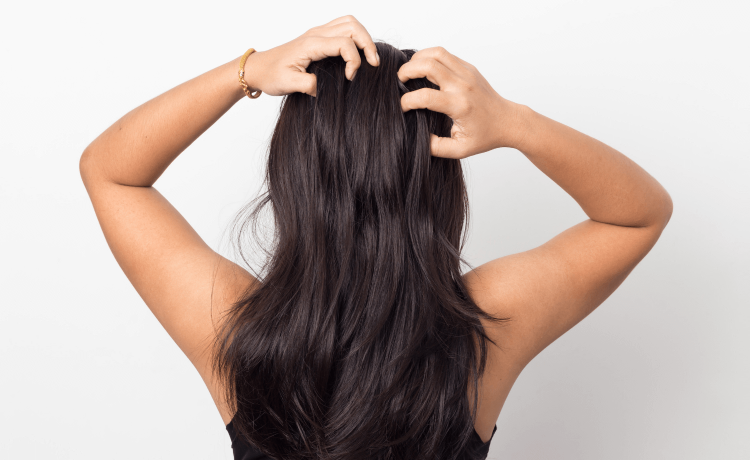 Fight a flaky scalp: advice from a derm