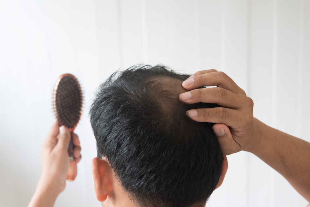 5 Signs Your Hair Loss Is Pointing to a More Serious Condition