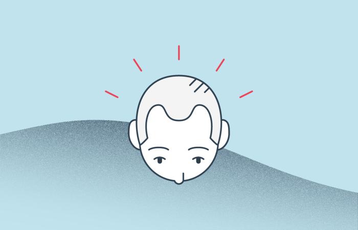 male pattern baldness illustration