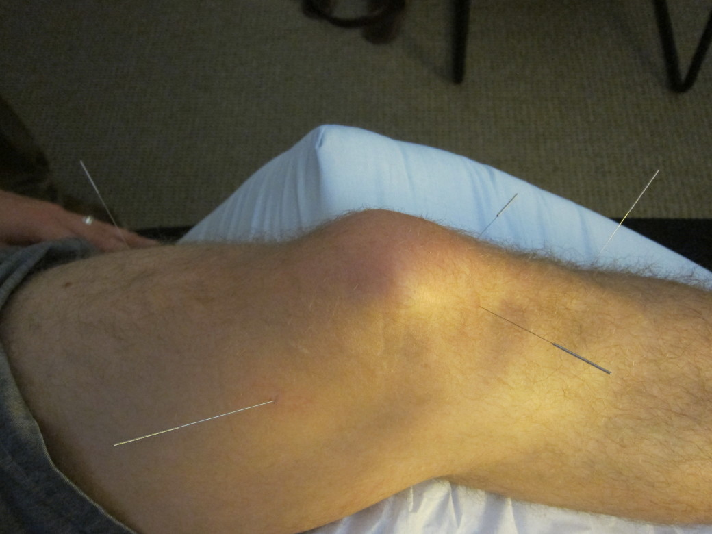 knee pain treatment using sports medicine acupuncture