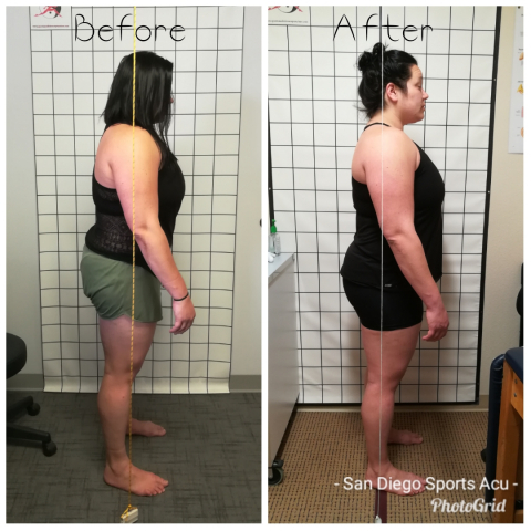 before and after postural alignment
