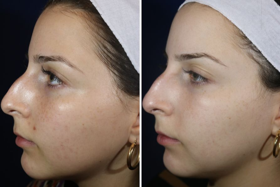 My Skin's Journey : Week 12: Banish Acne Scars