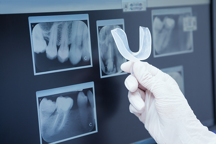 dental x-ray use to create a mouth guard