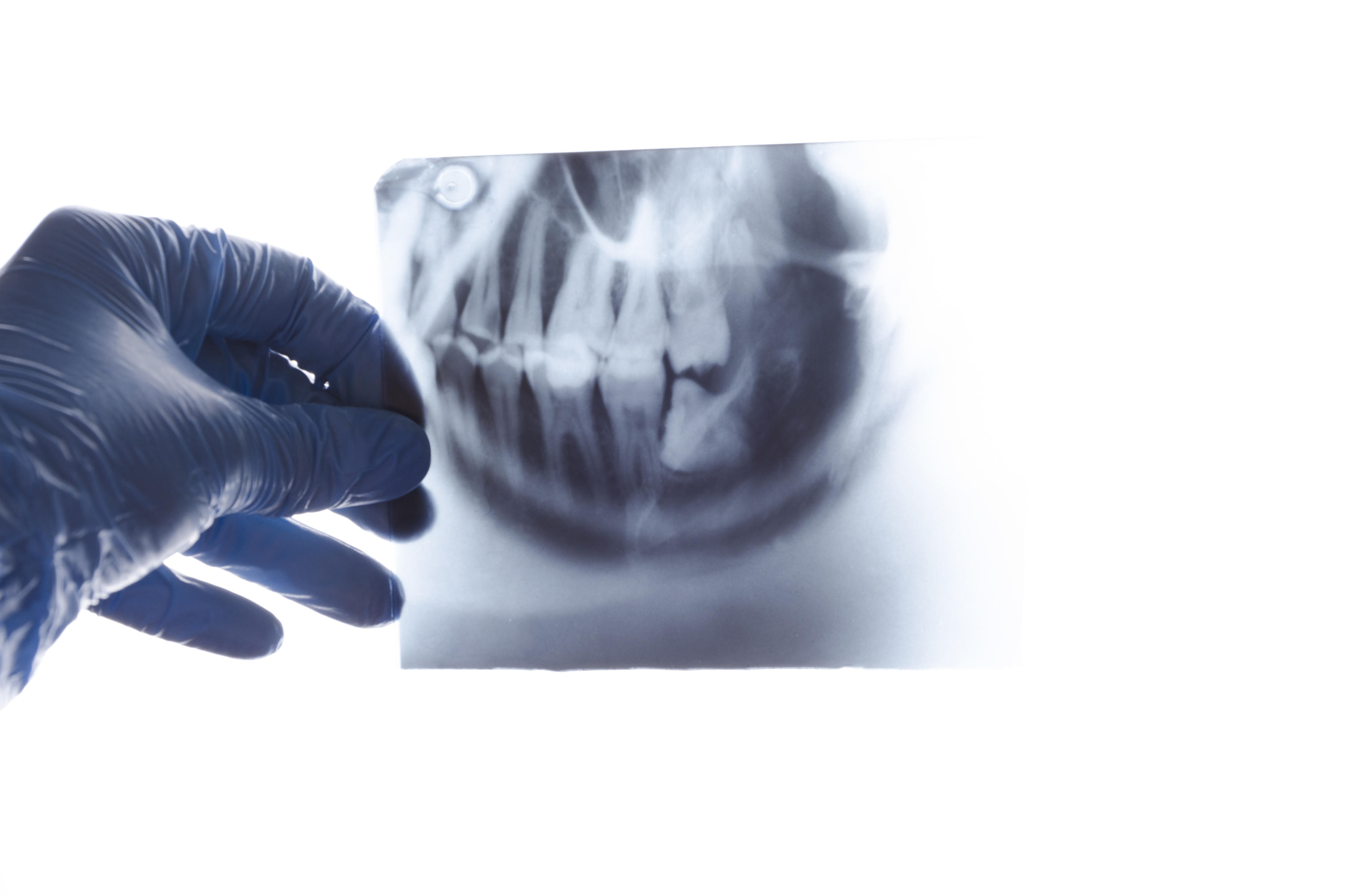 X-rays - what does preventive dental care cover ?