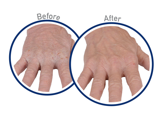 Eczeama Hand Before After Lockup