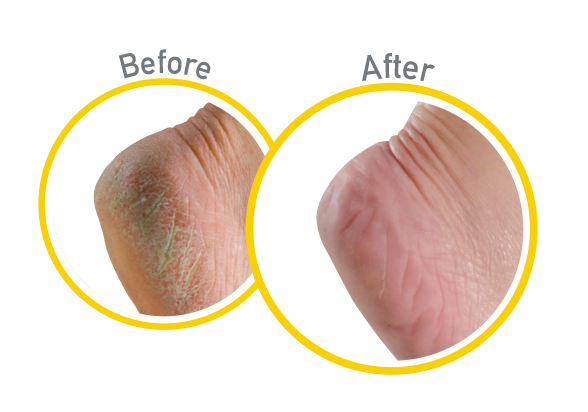 Healthy Feet  Exfoliating - Before and After Use - Guaranteed Relief for Extremely Dry, Cracked Feet