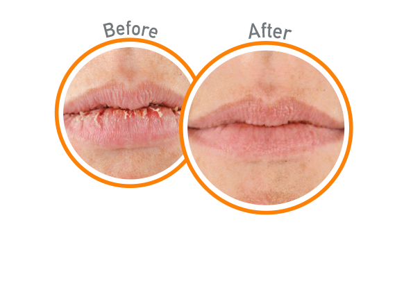 Lip Repair - Before and After Use - Guaranteed Relief for Extremely Dry, Cracked Lips