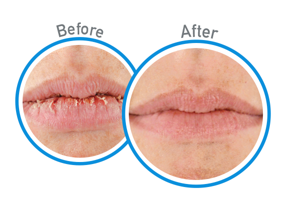 Lip Repair Cooling Relief - Before and After Use - Guaranteed Relief for Extremely Dry, Cracked Lips
