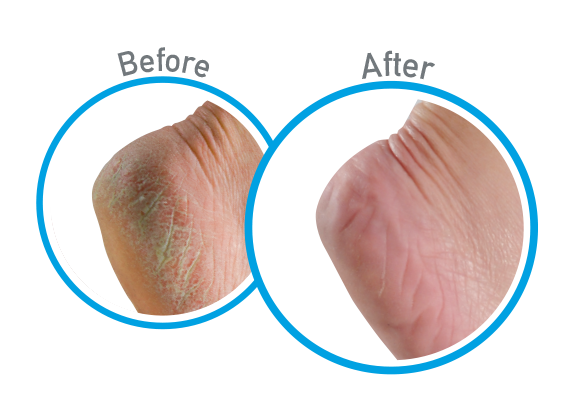 Healthy Feet - Before and After Use - Guaranteed Relief for Extremely Dry, Cracked Feet