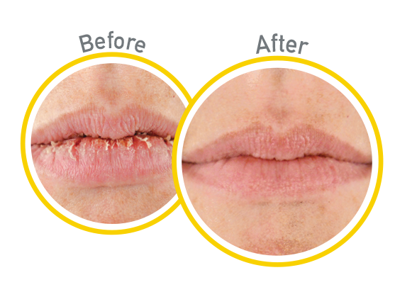 Lip Relief SPF 35 - Before and After Use - Guaranteed Relief for Extremely Dry, Cracked Lips