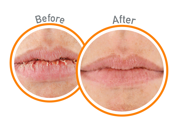 Lip Repair Unscented - Before and After Use - Guaranteed Relief for Extremely Dry, Cracked Lips