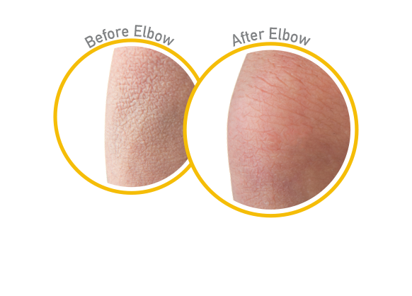 Skin Repair - Before and After Use - Guaranteed Relief for Extremely Dry, Itchy Skin