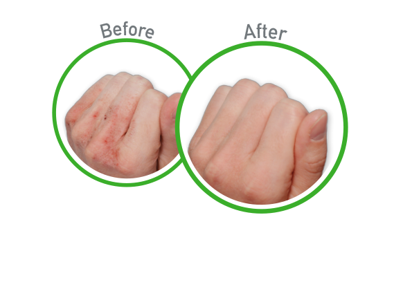 Working Hands - Before and After Use - Guaranteed Relief for Extremely Dry, Cracked Hands