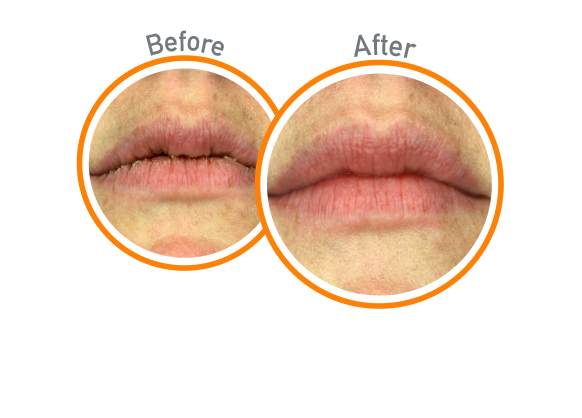 Lip Relief Night Treatment - Before and After Use - Guaranteed Relief for Extremely Dry, Cracked Lips