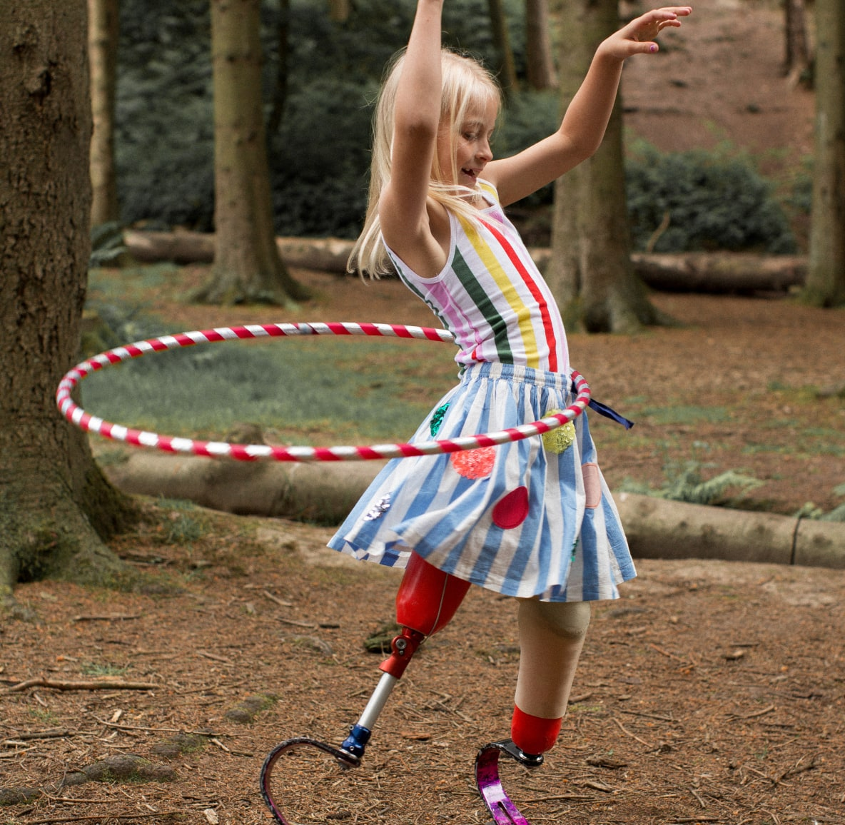 Young girl with prosthetic legs wearing striped skirt and leotard playing with a hula hoop