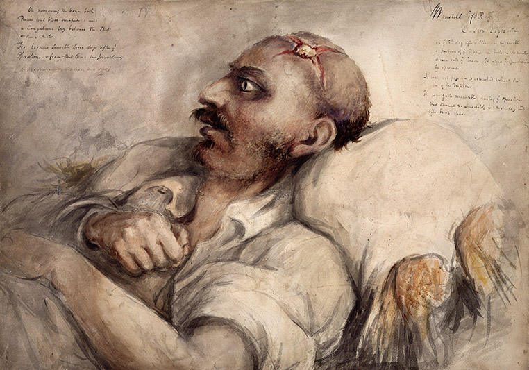 Soldier-suffering-from-head-wound