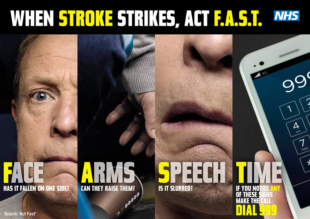 Think F.A.S.T - know the signs of stroke