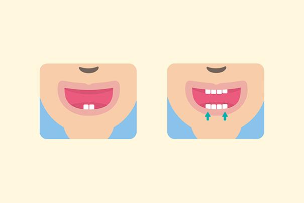 Tableau de percée des dents du bébé - Comprendre quand les dents de mon bébé