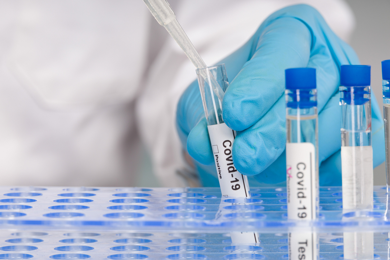 Antibody tests: How do they work and should I get one?