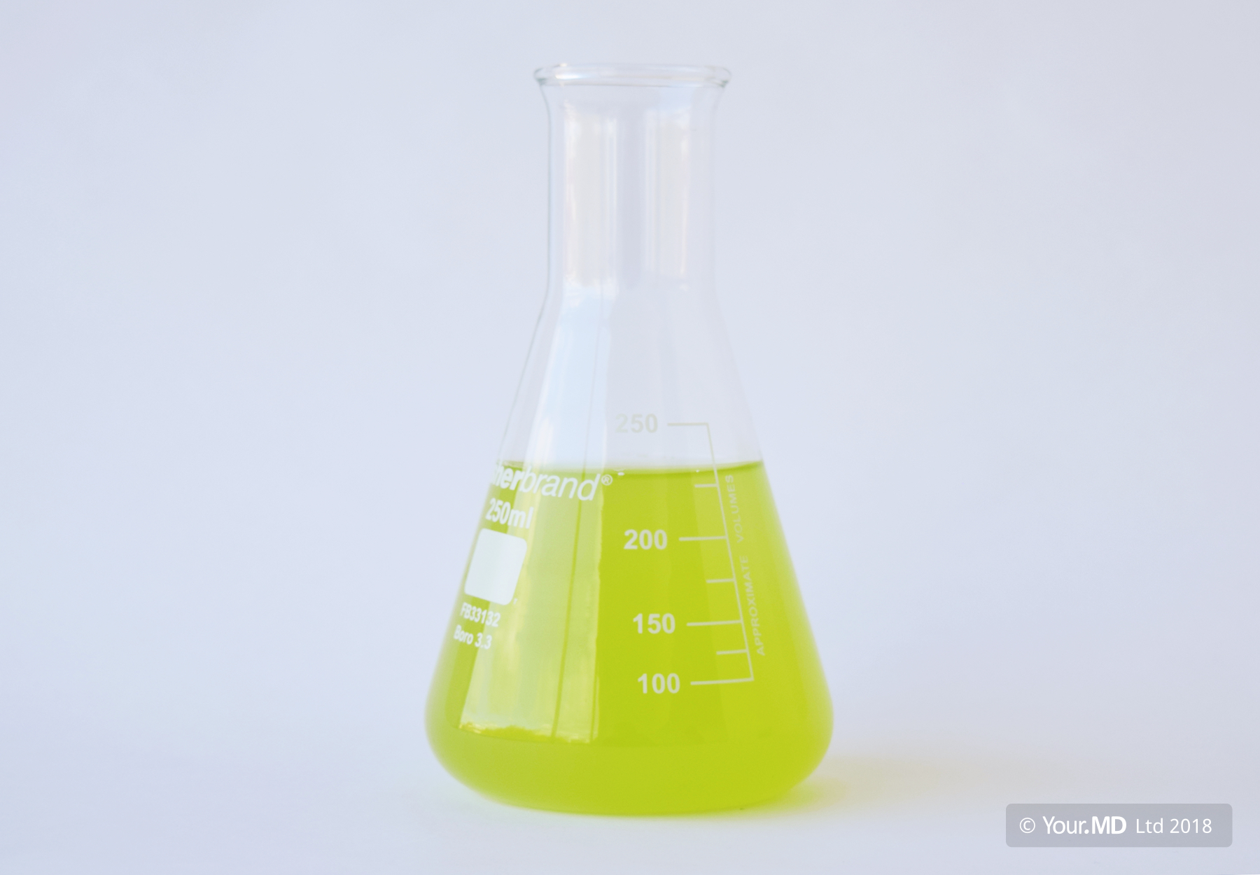 Sample of green urine