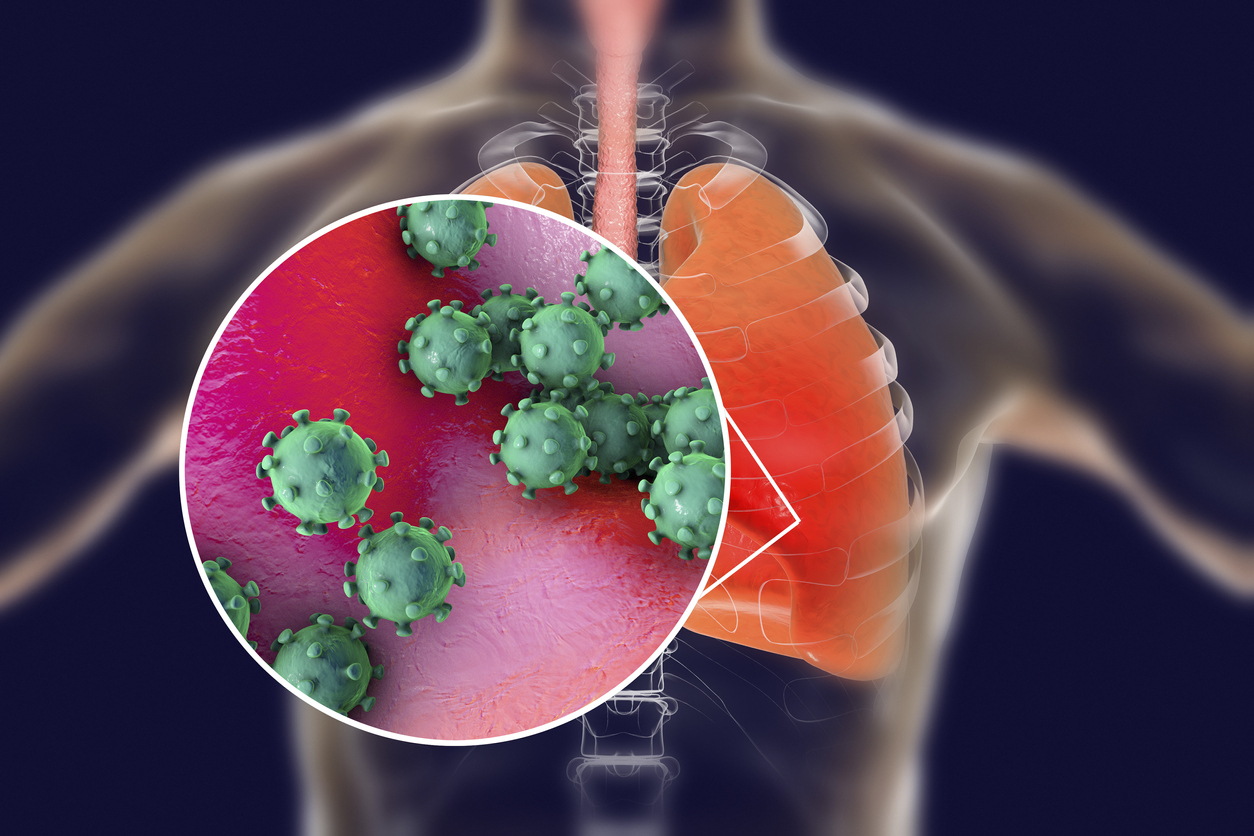 Coronavirus: lo que necesita saber