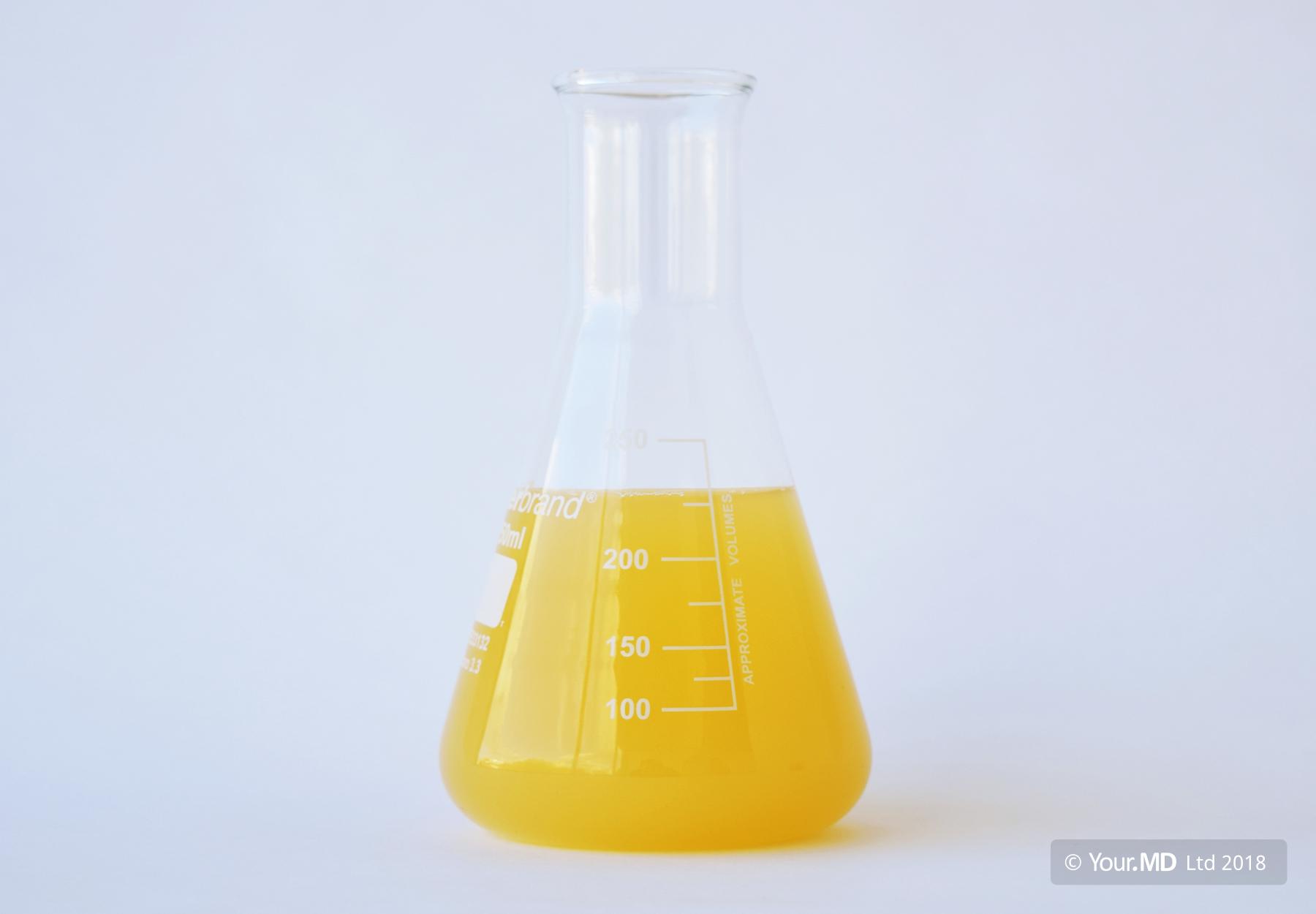 Sample of orange urine