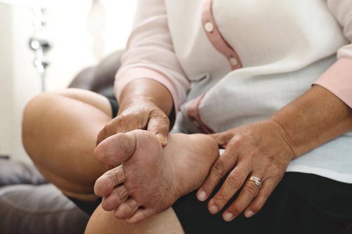 dry skin and cornea on senior woman foot
