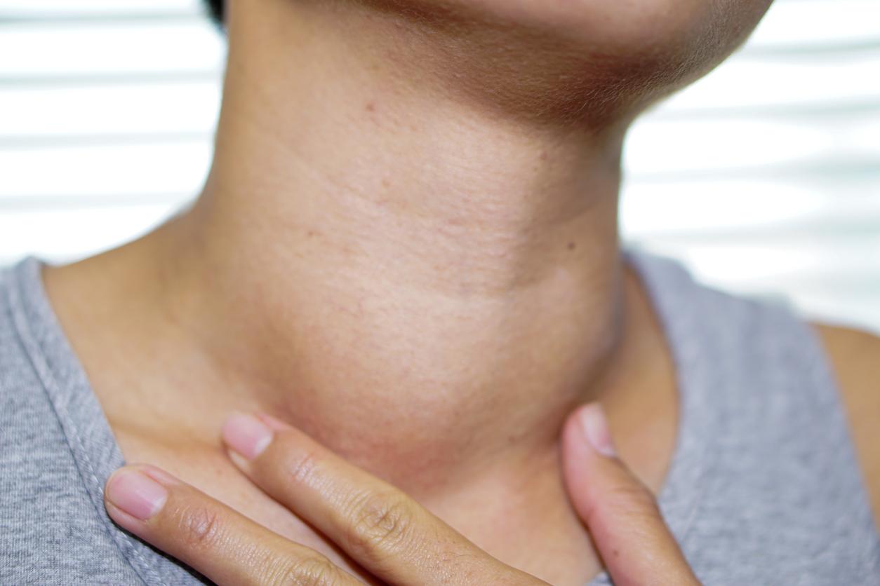 Swollen thyroid gland