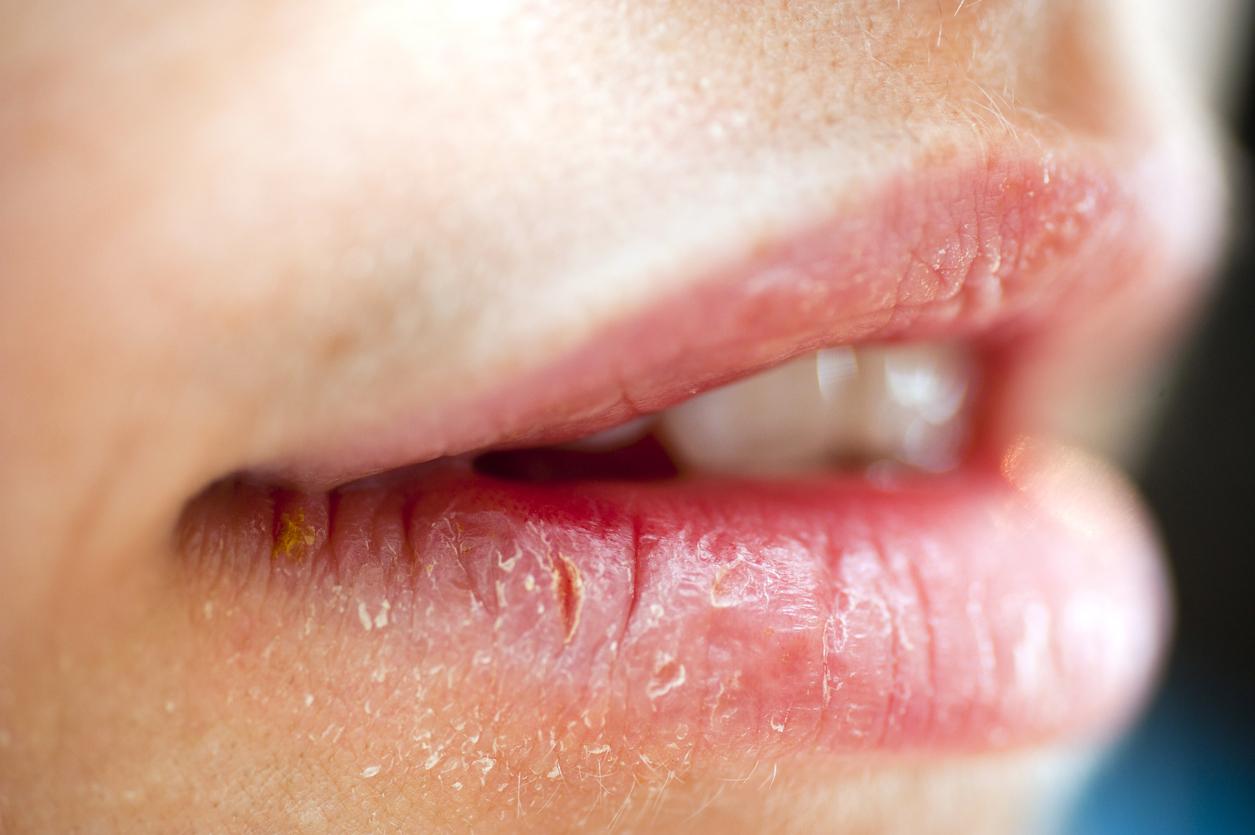 Cuts on lip