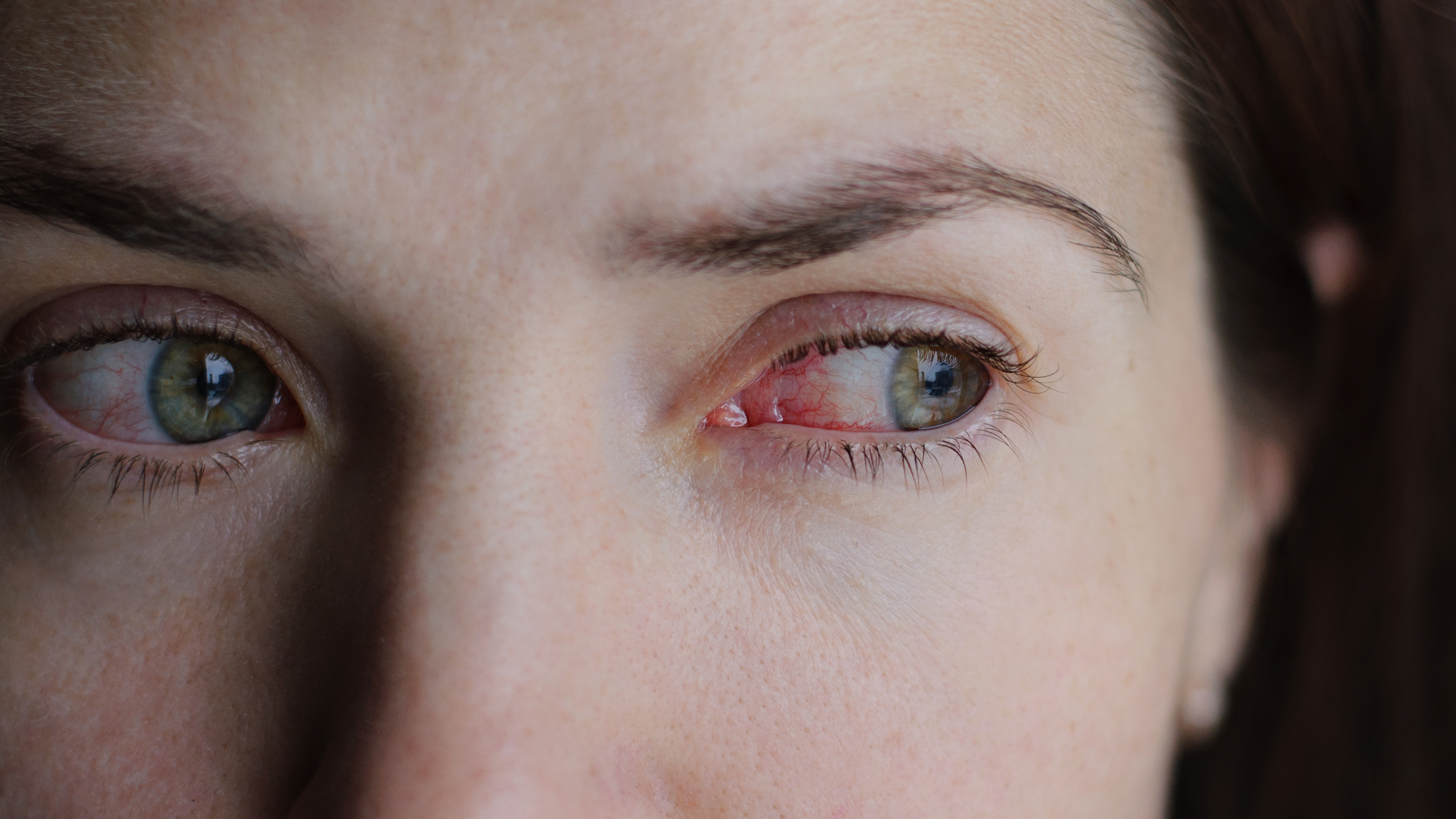 Should I go to work with pink eye?