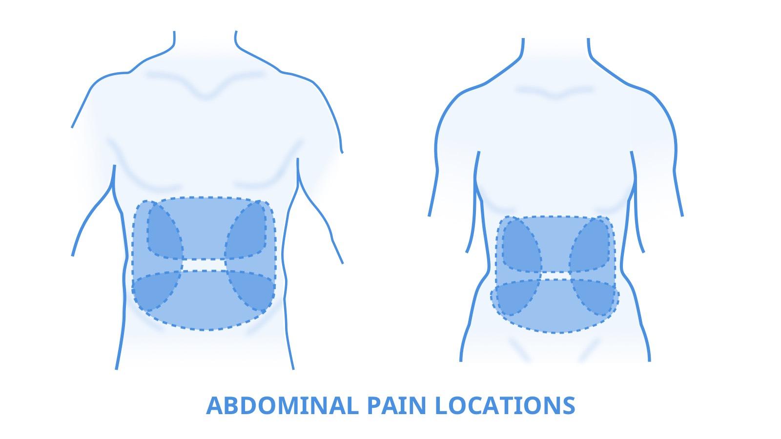 4 प्रकार के पेट दर्द और आप इस स्थिति में क्या कर सकते हैं?