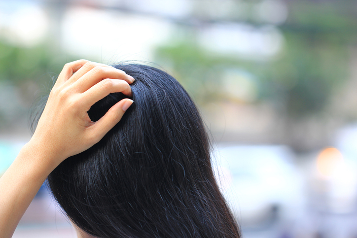 Head lice vs dandruff: how do I tell the difference?