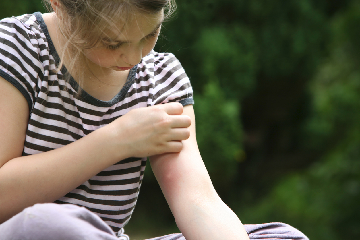 Girl with mosquito bite on arm
