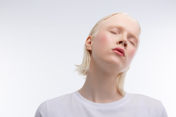 Albinism - Healthily