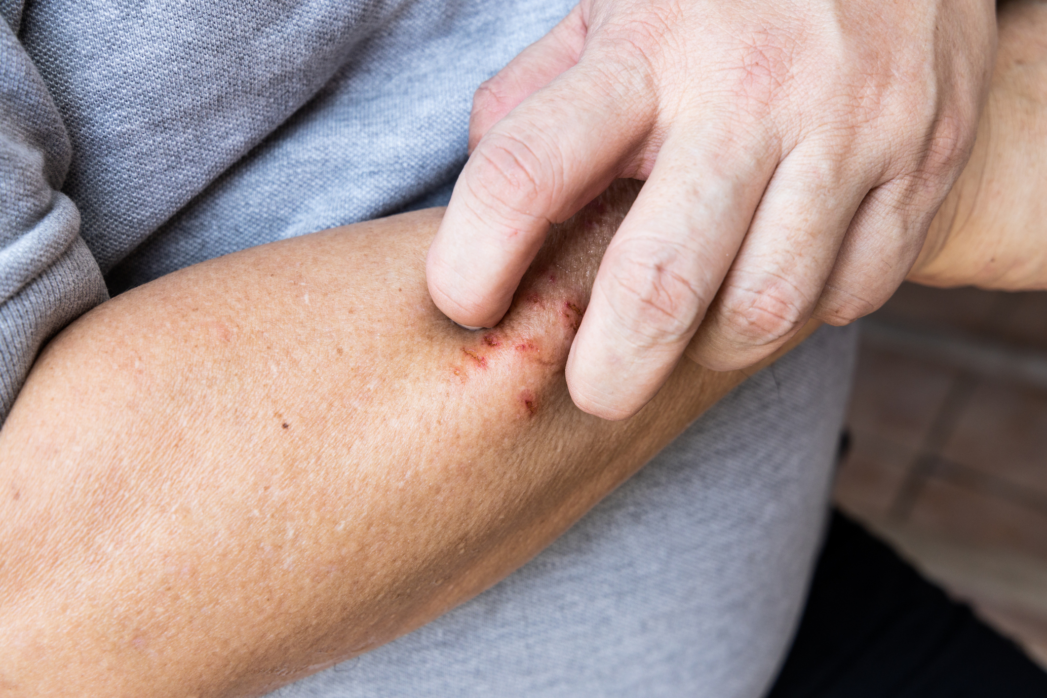 Natural treatments for eczema