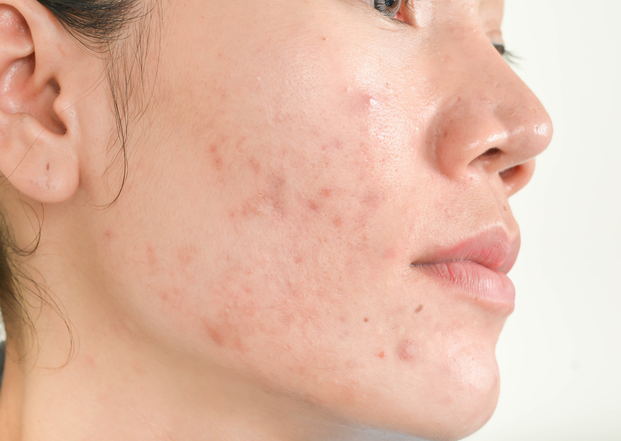 Natural ways to treat acne