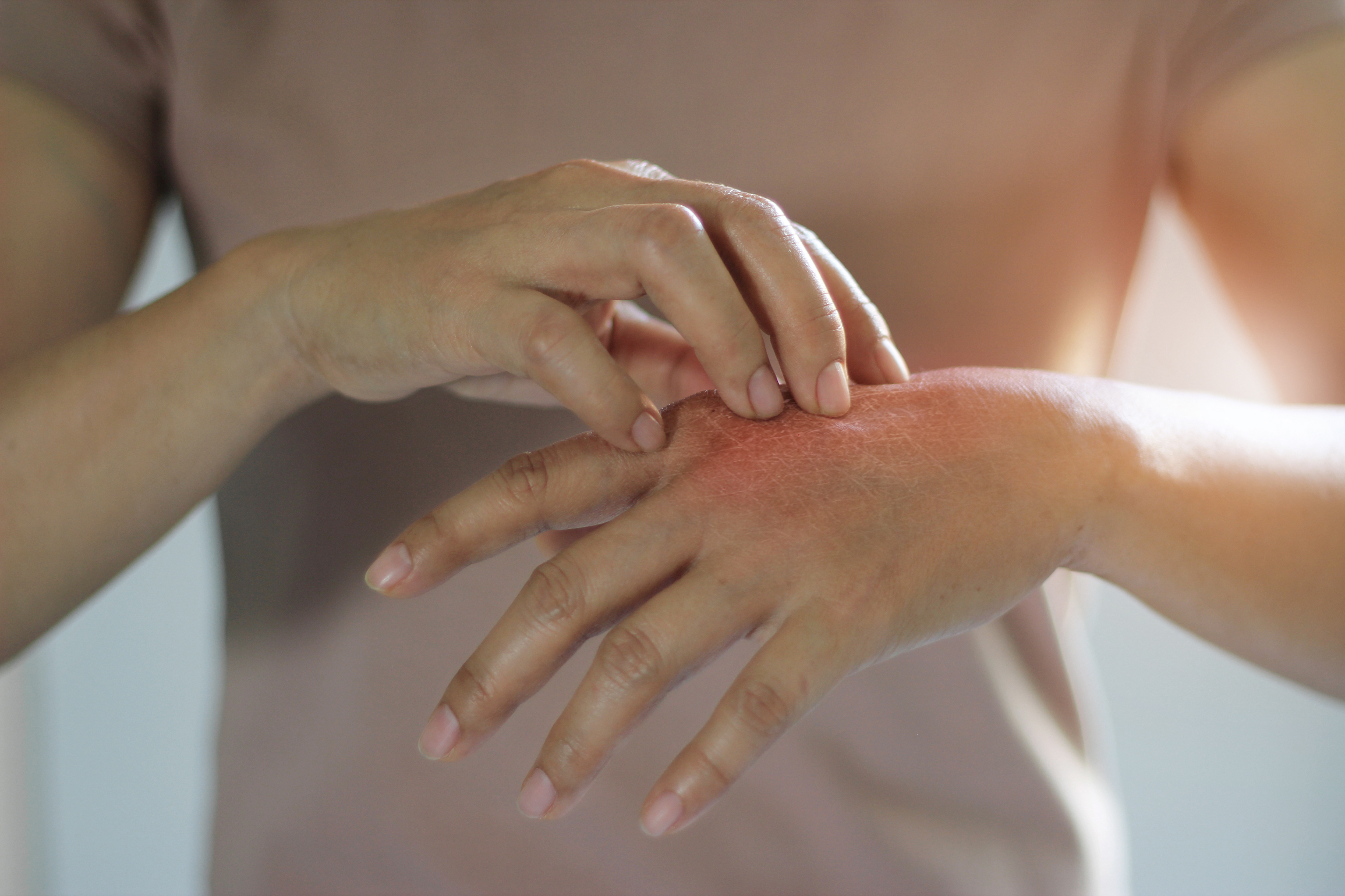 What's the best treatment for eczema?