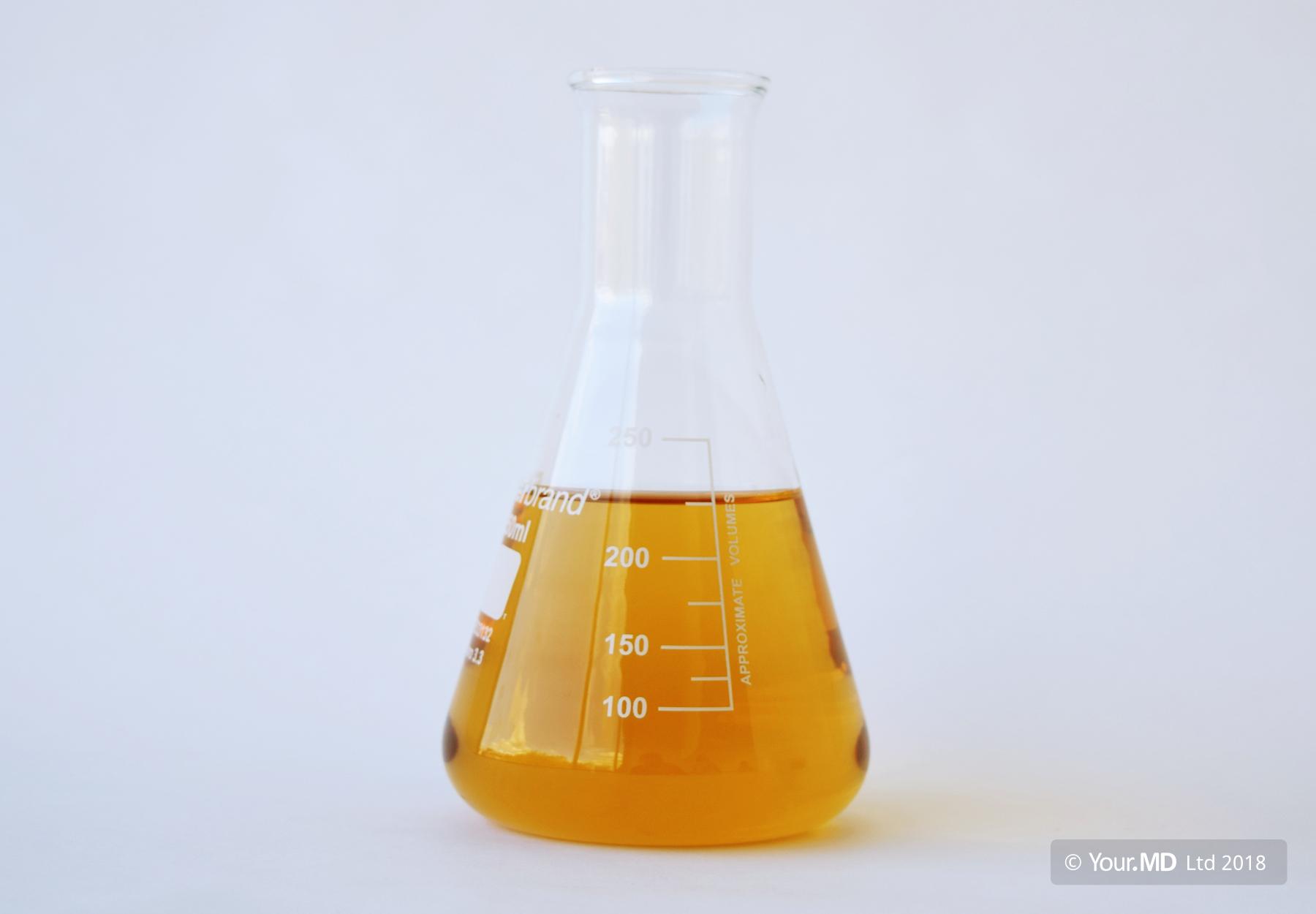 Sample of dark urine
