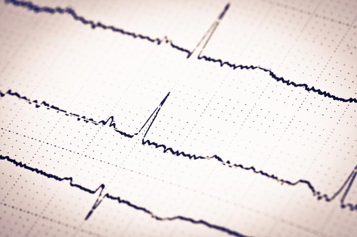 Heart brain monitoring