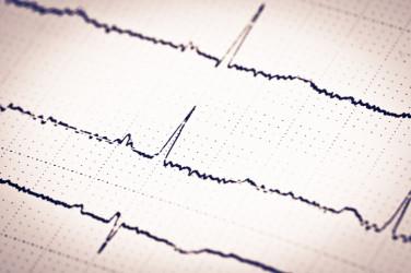ह्रदय और मस्तिष्क की निगरानी