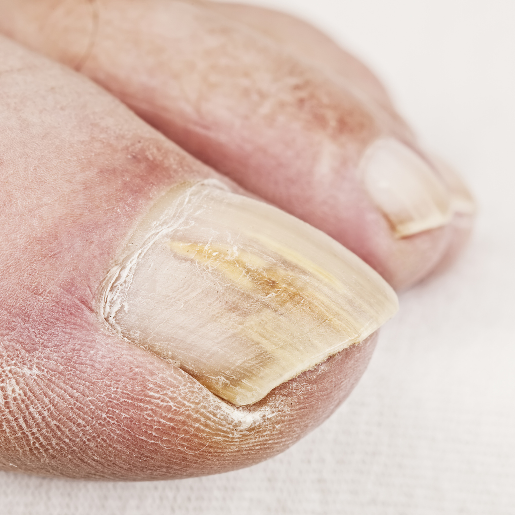How can I prevent a fungal toenail infection?