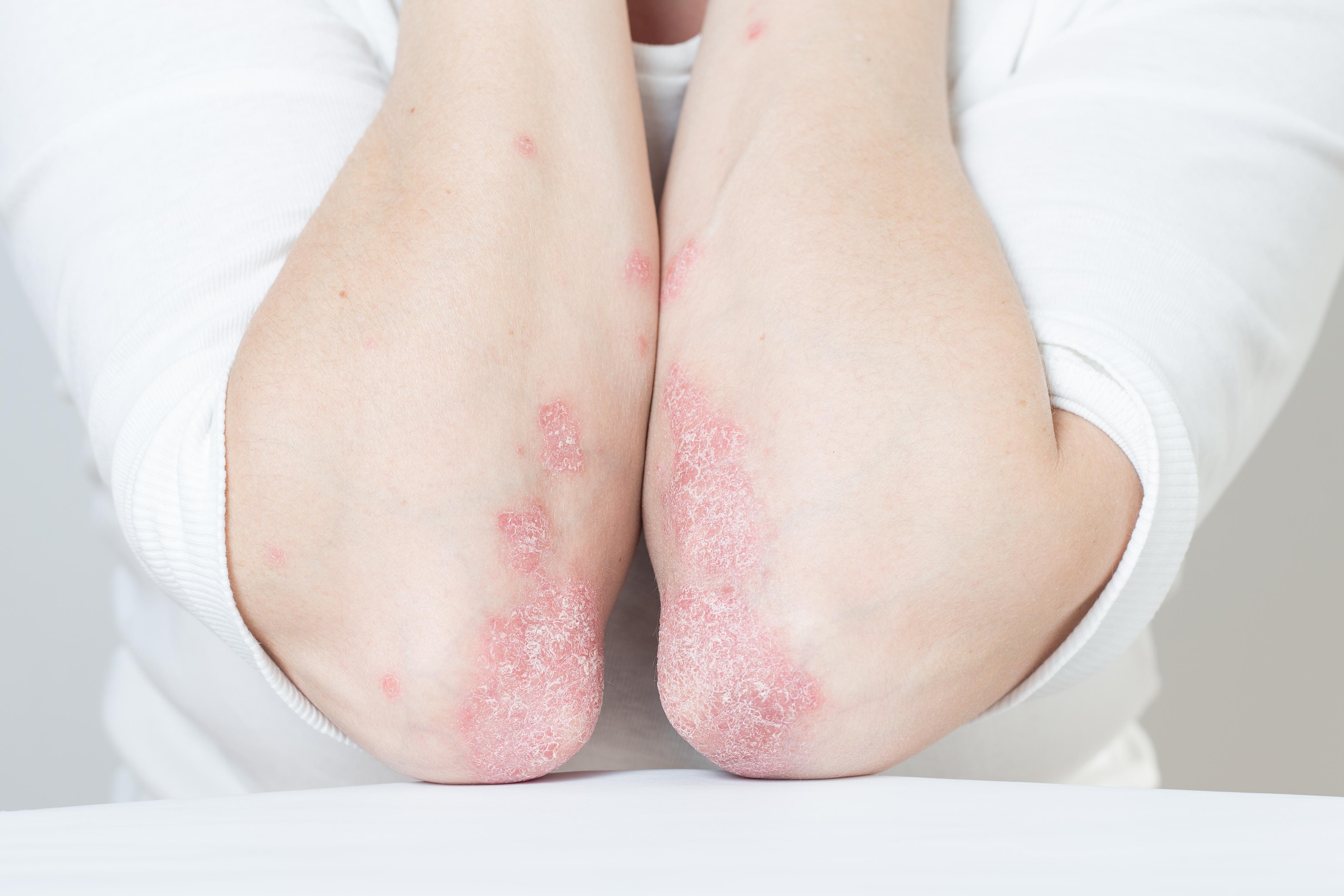 5 formas naturales de tratar la psoriasis