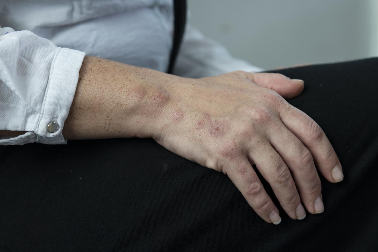 Bedbug bites on a woman's hand