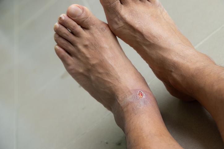 Skin ulcers