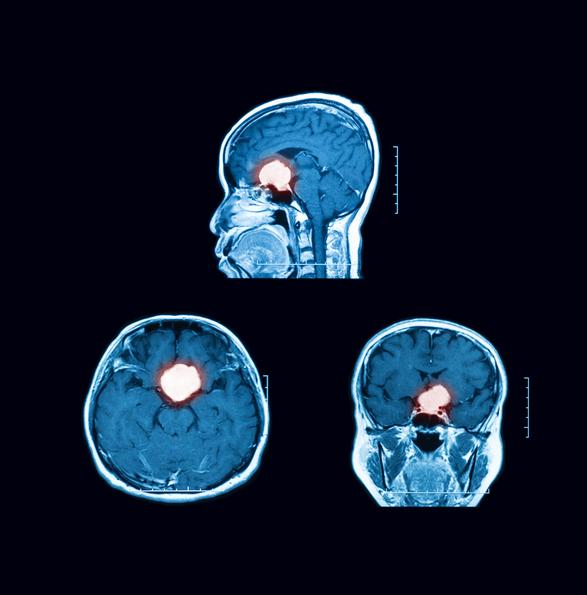 Sinus thrombosis
