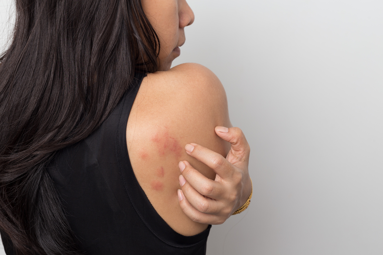 How long does it take for hives to go away?