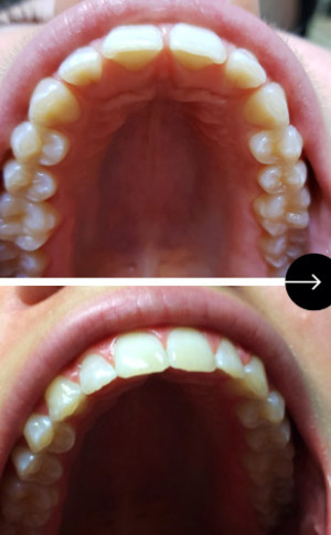 resultat orthodontie joovence