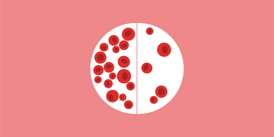 Comparative illustration of red blood cells and abnormalities