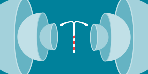 An illustration of an IUD.